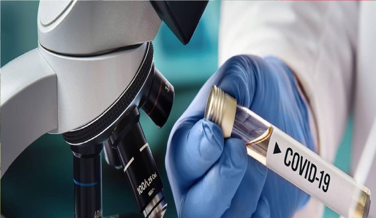 UIS comenzó práctica de pruebas de coronavirus | Bucaramanga | Metro | EL FRENTE