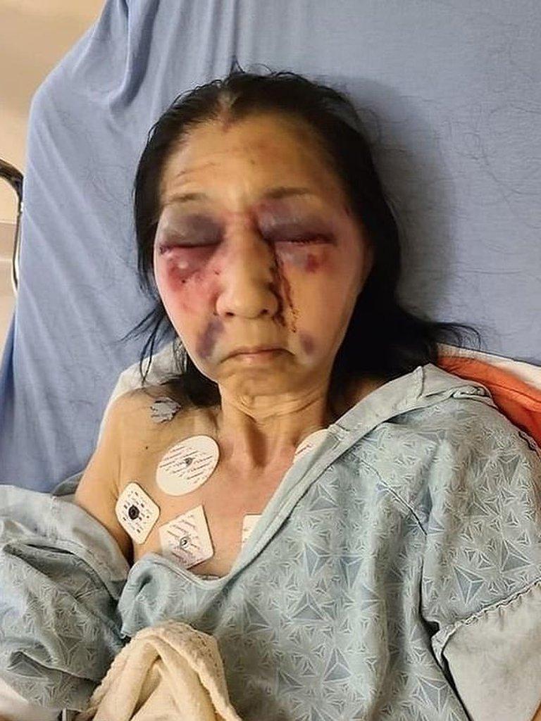 Pensó que era una asiática y la atacó brutalmente | foto | EL FRENTE